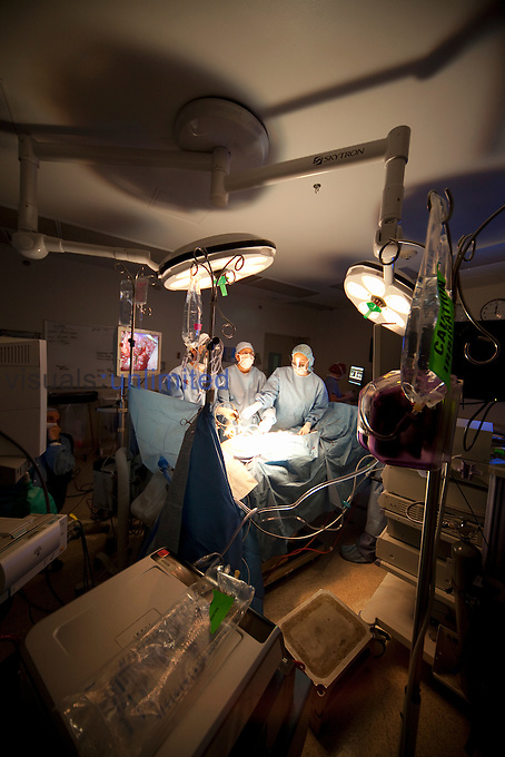 Surgical team during a laparoscopic appendectomy