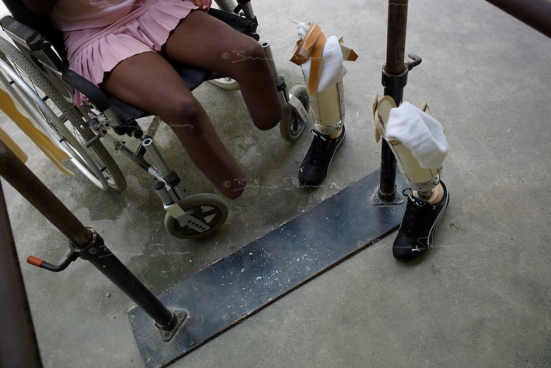 Port Au Prince, Haiti, April 13, 2010.Mana Alexandre, 22, has lost both feet in the earthquake when a wall fell on her. Handicap International center; the need for prosthetics and reeducation is enormous and will be long lasting as many victims are children who will need constant adjustments to their prothesis.