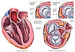 Heart -Mitral Valve Prolapse.
