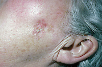 Skin cancer of the face ( squamous cell carcinoma ). Carcinoma is a suffix meaning a malignant tumor composed of epithelial cells, with a tendency to metastasize. This image may only be used to portray the subject in a positive manner..©shoutpictures.com..john@shoutpictures.com