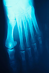 x-ray of pre-op, pre-opertative bunion on right foot