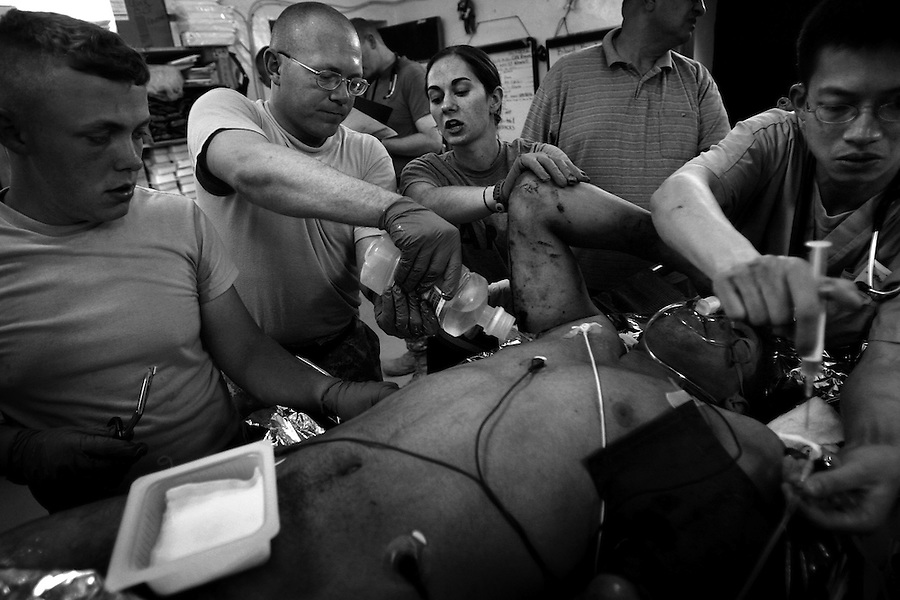 Medics treat the injuries of an Iraqi soldier - wounded by an IED strike - in the emergency room at Charlie Medical Co. at Camp Ramadi, Iraq on Wed. Oct. 04, 2006.<br />