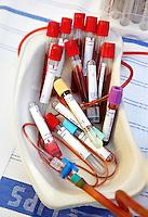 Buisjes met bloed in een ziekenhuis