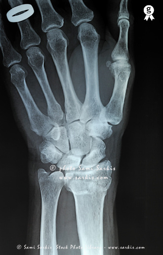 Man's (58) left hand with wedding ring,Man's (58) left hand is broken at the extremity of the radius bone, X-ray<br />  (Licence this image exclusively with Getty: http://www.gettyimages.com/detail/98945988 )