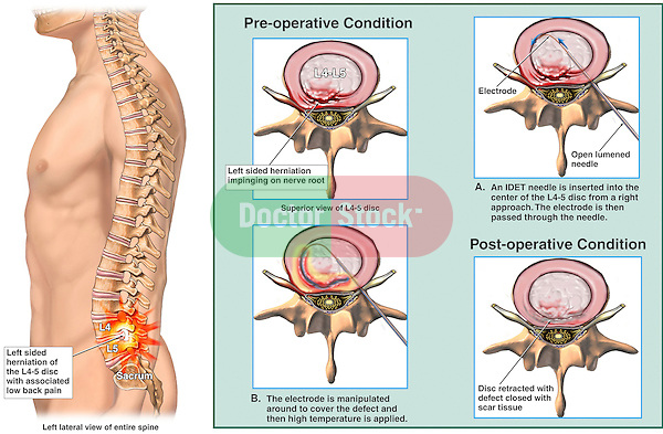 Low Back Pain Relieved by Intradiscal Electrothermal Therapy (IDET).