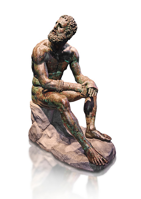 Rare original Greek bronze statue of an Athlete after a boxing match, a 1st cent BC. The athlete, seated on a boulder, is resting after a boxing match. The boulder is a modern addition that replicates the ancient original. The face, ears, and nose are severely wounded by blows received during the match. No wounds appear on the body since ancient boxing practices made the afce the main target. The boxer is only wearing a sort of loin cloth (kynodesme) around his waist. Elaborate leather gloves (himantes oxeis) protect the hands and the forearms. They consist of thick leather straps that bind the four fingers, leaving the thumb free. On the forearms the gloves are bordered with fur lining. A series of marks on the straps above the left ring fingers seem to be a signature of the Athenian sculptor Appolonios, son of Nestor who was active during the 1st century B.C. Careful analysis shows that the marks are actually corrosions of the bronze surface. The Greek letter 'a' is impressed on the middle toe of the left foot and is probably a mark identifying the workshop that produced the statue. The statue of the boxer is of the highest quality with a highly detailed rendition of the athletic anatomy and facial feature. The artist was clearly inspired by the style of Greek sculptor Lysippus and scholars generally consider it an original Greek bronze of the 1st Century B.C. . The National Roman Museum, Rome, Italy