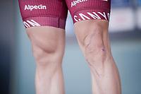 scars by Marco Haller (AUT/Katusha-Alpecin)<br /> <br /> 107th Scheldeprijs (1.HC)<br /> One day race from Terneuzen (NED) to Schoten (BEL): 202km<br /> <br /> ©kramon