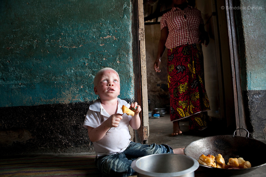 June 30, 2010 - Dar es Salaam, Tanzania -Mwanahawa Yusufu is a 27 year old woman without albinism. She lives with her 2 year old albino son, Yusufu Sereman, in a 6 m2 rented room in Dar es Salaam. When she gave birth to Yusufu, her husband got very angry and left her saying that she had slept with a musungu, a white man. Since then, she has never heard from him. Mwanahawa survives as a single parent roasting and selling Cassava and other small food items. Her son Selemani already has badly damaged skin from exposure to the sun, but she cant get him treat because she has difficulties to pay for the treatments. Usually developing by a very young age a facial rash of dark melanomas is often the precursor of the skin cancer that kills so many albinos in early adulthood. Albinism is a recessive gene but when two carriers of the gene have a child it has a one in four chance of getting albinism. Tanzania is believed to have Africa' s largest population of albinos, a genetic condition caused by a lack of melanin in the skin, eyes and hair and has an incidence seven times higher than elsewhere in the world. Over the last three years people with albinism have been threatened by an alarming increase in the criminal trade of Albino body parts. At least 53 albinos have been killed since 2007, some as young as six months old. Many more have been attacked with machetes and their limbs stolen while they are still alive. Witch doctors tell their clients that the body parts will bring them luck in love, life and business. The belief that albino body parts have magical powers has driven thousands of Africa's albinos into hiding, fearful of losing their lives and limbs to unscrupulous dealers who can make up to US$75,000 selling a complete dismembered set. The killings have now spread to neighboring countries, like Kenya, Uganda and Burundi and an international market for albino body parts has been rumored to reach as far as West Africa. Photo credit: Benedicte Desrus