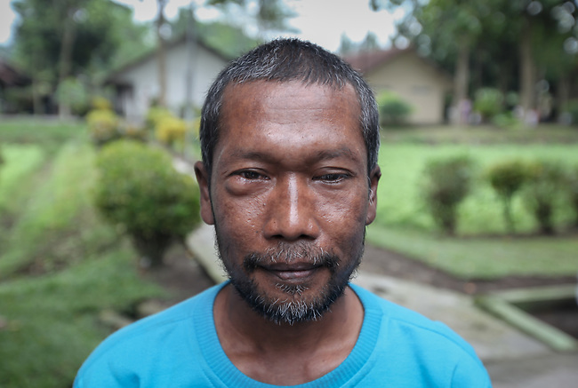 """5 April 2017, Surabaya,East Java,Indonesia: Sudermo a mental illness sufferer was released from his shackles at his family home and taken for treatment at at mental institution before being sent to Bina Laras Social Rehab Centre for his final stage of adjustment before being set back to his family. He had a long history of mental illness and it is hoped the E-Shackling program will make it possible for him to live in the community without being chained to a post.  """"E- Shackling""""  aims to free people suffering from mental illness, from the shackles that family often place them in to control them in the wake of a lack of treatment options and the program will treat them and enter them in a data base allowing them to be traced before releasing them back to their families. Some people stay chained to a stake or in rooms for years by their families and not all families are willing to take their sick family members back. Picture by Graham Crouch/The Australian"""