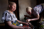 For Tanzania Albino Society (TAS)