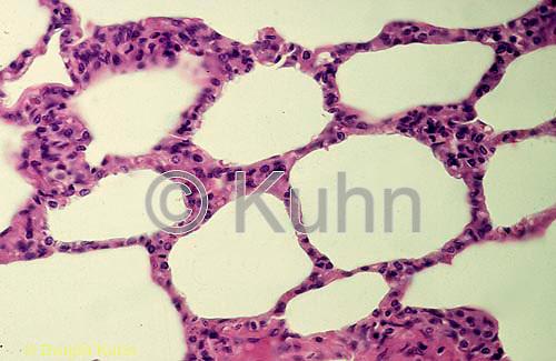 CZ18-010a  Lung Tissue - air sacs (aveoli)