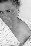 Ana Maria Florenço de 65 anos, doente de Chacas , usa marca passo e é moradora no Sítio Nossa Senhora da Conceição no município de Nazaré da Mata em Pernambuco