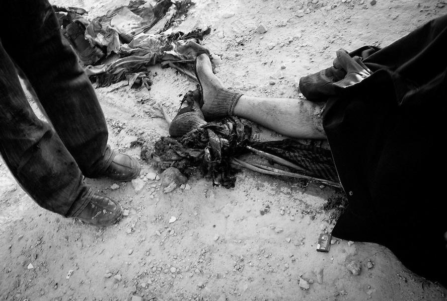 Rebel casualty outside Ajdabiya, Libya.