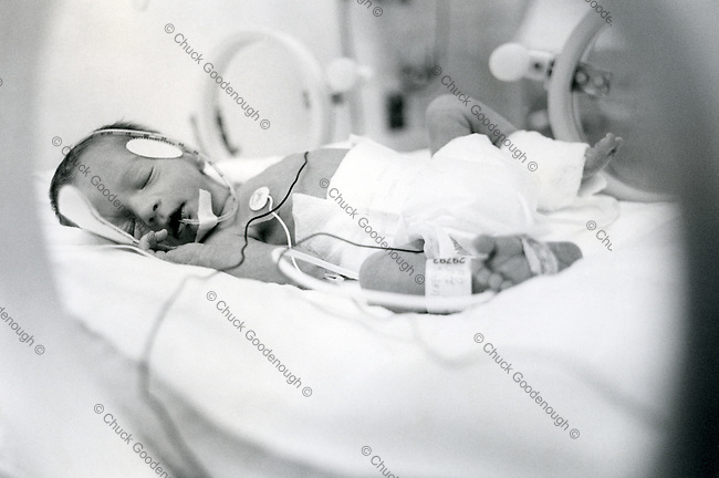 Black & White Stock image showing a baby inside a neonatal intensive care incubator.