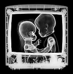 X-ray image of a couple kissing on screen (white on black) by Jim Wehtje, specialist in x-ray art and design images.