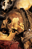Near Nasca, Peru. Skull with braided hair and skin, showing teeth badly worn down; Chauchilla cemetary.