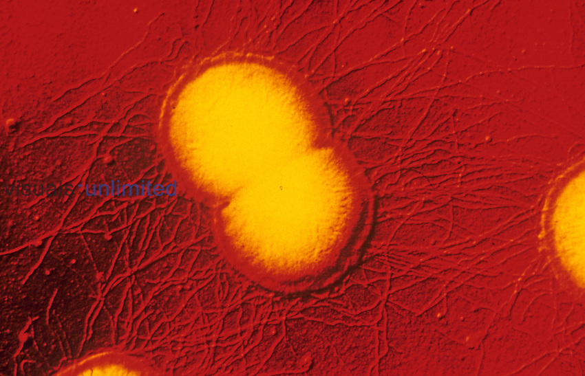 Streptococcus pneumoniae ,also called Diplococcus pneumoniae, Bacteria cell division into the common diplococci form. These gram-positive pneumococci are one of several pathogens that cause pneumonia and other human diseases. SEM X20,000.