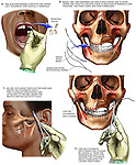 This custom medical exhibit features surgical images  for stabilization of fractures to the maxilla and mandible (involving the upper and lower jaw and teeth). Images include: 1. Tooth extraction, 2. Stabilization wire placement, and finally 3. Immobilization of the jaws with Erich arch bars.