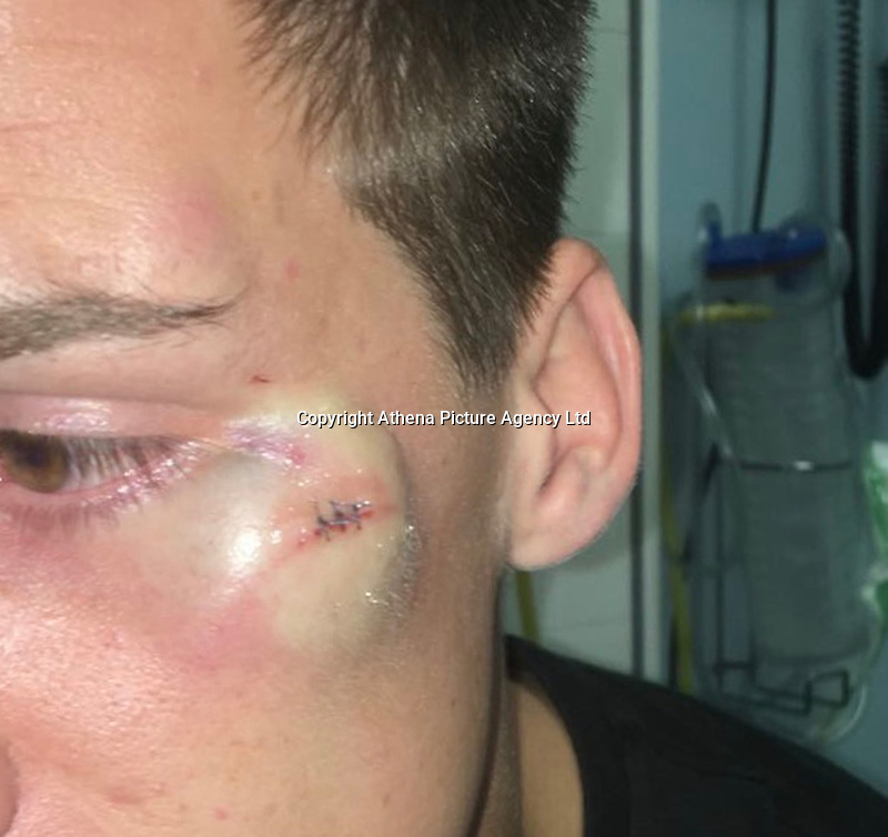 """Pictured: The injury sustained by Matthew Lloyd<br /> Re: A young mum who used a four-inch stiletto heel to carry out an horrific attack on an innocent couple has walked free from court.<br /> Danielle Prosser, 29, took off the shoe and lunged at the startled pair outside a nightclub, causing horrific injuries.<br /> Sophie Rees, 19, was knocked unconscious and needed to have her scalp stapled back together.<br /> Her boyfriend Matthew Lloyd, 20, needed surgery to his cheek after suffering severe facial injuries caused by the sharp heel.<br /> A judge said the injuries were so severe the offences merited going to prison.<br /> But mother-of-three Prosser was let off with a suspended sentence because she was sorry for her """"moments of stupidity.""""<br /> Prosser was filmed approaching the couple armed with the black stiletto outside Coolers nightclub in Merthyr Tydfil, South Wales.<br /> The court heard there was had been banter as revellers left the venue at 2am with drink and food being thrown."""