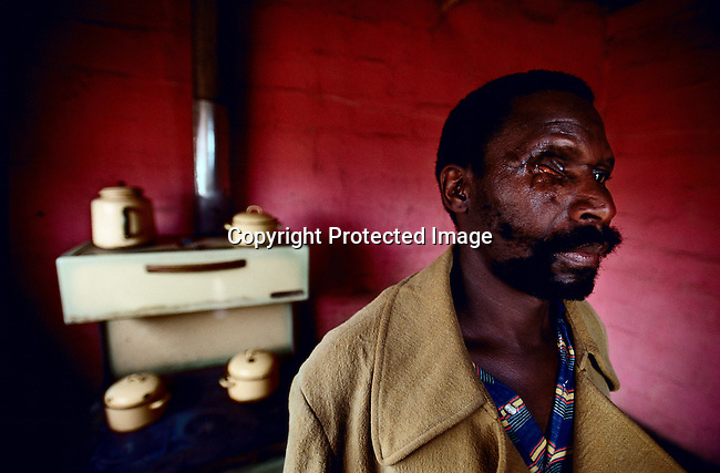 Elphas Lukele, a 48 year-old farm worker stands in his house with an injured eye in Wakkerstrom, South Africa. Lukele was shot in one eye and a hand by security commandos sent out by his farm boss. He was fired from the farm but is still living on the farmer''s land with 22 family members. The South African government is facing growing pressure to redistribute land that was taken during the old Apartheid regime. (Photo by: Per-Anders Pettersson)
