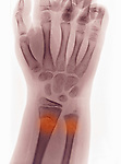 Greenstick or buckle fracture  of the distal radius and ulna of a 9 year old boy who fell and landed on his outstretched hand.