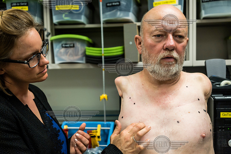Prosthetist Courtney Moran searches the body of Les Baugh for phantom sensation at John Hopkins University's Applied Physics Labrotory. In 2013, Les underwent a state of the art surgery called Targeted Muscle Reinnervation, where the bundle of nerves at the stump of his shoulders were remapped to his pectoralis muscles. When Dr. Moran hits a nerve, Mr. Baugh can feel movement in his phantom limbs which are then mapped to match the sensors inside the Modular Prostethic Limbs. This will allow him to move the robotic limbs with his mind. Baugh lost both his arms at the shoulder in a freak electrical accident 40 years ago. Since then, he has managed life mostly without the help of prosthetic arms, which he finds to be more of an uncomfortable nuisance than a help. In 2013, Les underwent a state of the art surgery called Targeted Muscle Reinnervation, where the bundle of nerves at the stump of his shoulders were remapped to his pectoralis muscles. After he recovered from surgery, researchers at Johns Hopkins Applied Physics Lab fitted him with two robotic arms, called the MPL or Modular Prosthetic Limb, and he was able to manipulate objects with his hands, just by thinking about it. The MPL is a state of the art prototype, and not ready for take-home, so Baugh has been practicing mind control at home in rural Walden using a virtual reality game paired with less advanced prosthetic limbs. At a later stage the researchers at Johns Hopkins hope to get Les to try more advanced versions of the MPL  in the hope that his remapped nerves will have grown deeper into his pecs and he'll be able to manipulate the arms more effectively.