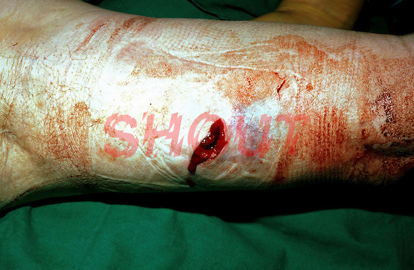 Stab wound to upper arm. This image may only be used to portray the subject in a positive manner..©shoutpictures.com..john@shoutpictures.com