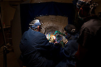 San Francisco, California, January 6, 2011 - From left, University of California San Francisco neurosurgeon Dr. Philip Starr and clinical fellow Dr. Ellen Air drill two holes into the skull of patient Linda Sharp during an iMRI surgery at University of California San Francisco Medical Center while Dr. Alexander Papanastassiou (right), a visiting doctor from the University Texas Health Science Center San Antonio observes. The MRI machine photographs the patient during the surgery allowing the doctors operating to view the procedure as well as support doctors and technicians to monitor from an outside room.  The iMRI procedure uses Deep brain stimulation (DBS), which has been used for over a decade to treat movement disorders such as Parkinson's disease, essential tremor, and dystonia. DBS uses a pulse generator implanted in the chest, similar to a pacemaker, to deliver pulses to specific regions of the brain via a permanently implanted electrode. In the U.S., DBS is normally done while the patient is awake, because the surgeon needs to induce the symptoms (like the involuntary movements of Parkinson's) to know if he's in the right place, and if the patient is unconscious, the symptoms can't be induced. Many patients find it hard to tolerate. Their head is clamped in a frame, they're aware of their surroundings, and the surgeon is deliberately producing tremors and twitches while they lie there...Interventional MRI (or iMRI) allows surgeons to implant these electrodes while the patient is unconscious taking advantage of MR imaging in real time by performing procedures inside the scanner itself.