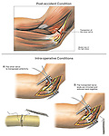 This surgical exhibit shows the repair of the ulnar nerve of the right elbow following a transection injury. It features: 1. The initial laceration injury to the nerve, 2. Open incision and isolation of the nerve ends, 3. End to end suture repair of the nerve, and finally 4. Transposition of the repaired nerve.