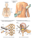 Back Surgery - T8-9 Thoracic Discectomy (Diskectomy) Procedure. Surgical steps: 1. Creation of a large posterior incision from T4- T12 with exposure of the vertebral elements and ribs; 2. Removal of the left side proximal rib and costovertebral portion of the T9 vertebra; 3. Final view of the T9 vertebra shown from above, detailing the decompression and removal of the disc herniation to free the spinal cord and nerve roots.