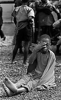 A Rwandan child rests her weary feet after seeing medical personel at the AmeriCares Buranga, Rwanda clinic Oct., 1994. The New Canaan, Connecticut humanitarian organization set up clinic about half way between Goma Zaire (now Congo) and Rwanda's capitol Kigali to help people returning from the refugee camps in Goma. While they saw a trickle of refugees, the clinic actually treated more people living in the countryside suffering from illnesses which resulted from the destruction of the infrastructure of the country in civil war.  AmeriCares ran the clinic from Aug. to Dec. 1994.  (photo Rick D'Elia)