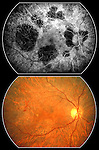Choroidal atrophy seen in a fluorescein angiogram and a color fundus photograph. The atrophy of the retinal pigment epithelium with windowing is of unknown cause but is probably inflammatory.