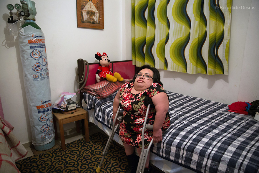 Brenda Eduardo Torres, 32 year-old, is pictured in her bedroom in Mexico City, Mexico, on February 16, 2017. Brenda is one of five siblings, three of whom have been diagnosed with Morquio syndrome. Morquio syndrome is a rare inherited birth defect that is estimated to occur in one of every 200,000 births. The disease may not be visible at birth; symptoms usually begin between ages 1 and 3. Morquio syndrome is a progressive disease, meaning symptoms get worse as a child grows. Photo credit: Bénédicte Desrus