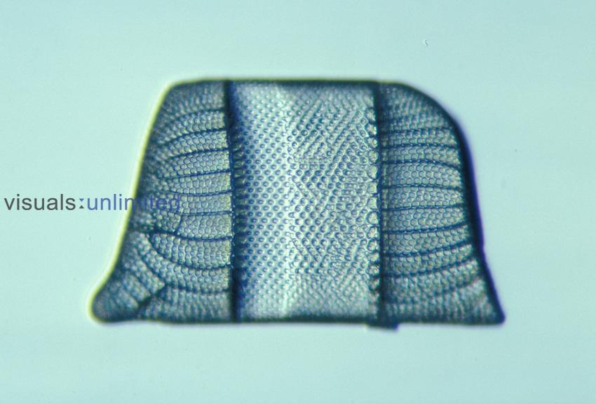Diatom (Isthmia nervosa). LM