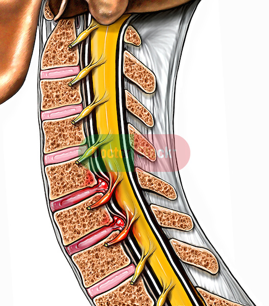 Whiplash Injury - Cervical Disc Herniations at C5-6 and C6-7