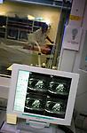 In het Academische Ziekenhuis Leiden wordt gewerkt met een MRI-scanner..© Ton Borsboom.steekwoorden: editorial, Nederland, gezondheidszorg, healthcare, ziekenhuis, ziekenhuizen, hospitaal, kliniek, clinic, hospital, patient, zorg, medische apparatuur, medische sector, staand, geneeskunde, detail,  wachtlijst, techniek, werkdruk, ziektekosten, ziektekostenverzekering, zorgpolis, zorgverzekering, nood, detail, controle, arbeid, techniek, beeldscherm.