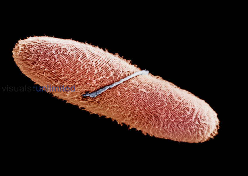 Spirostomum is a large Ciliate Protozoan, up to 3 mm long and visible even without a microscope. Note that the cilia are arranged in spiral bands, with one thicker band near the center of the protist. SEM X335.**On Page Credit Required**