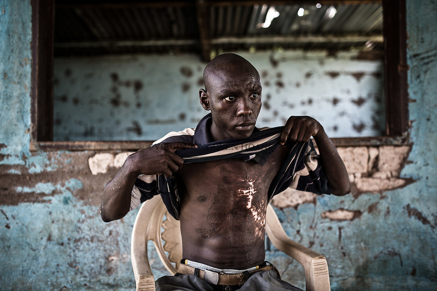 CAR, Bangui: Dialo Amidou, 23 years old has been burnt when his house was put in fire by the anti-balaka in December 2013. 16 April 2016<br /> <br /> RCA, Bangui: Dialo Amidou, 23 ans a &eacute;t&eacute; brul&eacute; quand sa maison a &eacute;t&eacute; incendi&eacute; par des anti-balaka au mois de d&eacute;cembre 2013. 16 avril 2016