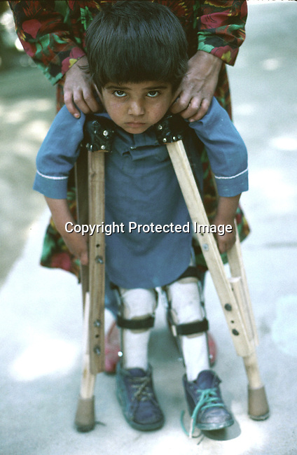 An unidentified young mine victim on july 21, 1996 at the Red Cross Orthopedic center in Kabul, Afghanistan. Thousands for Aghans has los their limbs because of mines. The Taliban has controlled the Country since 1996..(Photo: Per-Anders Pettersson/Liaison Agency)