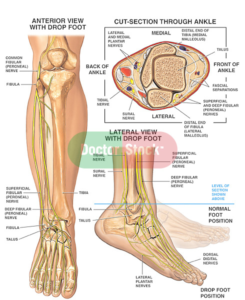 Anatomy Of The Foot And Ankle With Foot Drop Deformity Doctor Stock