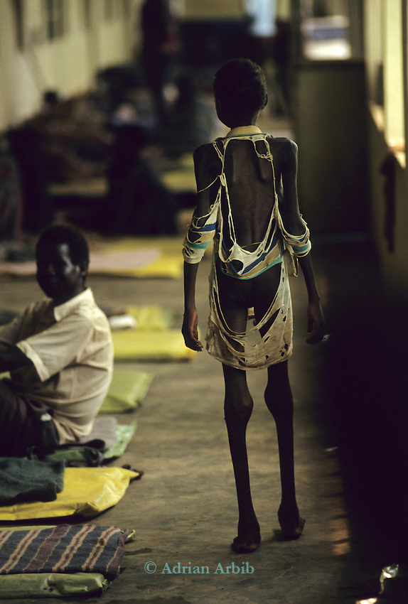 A Dinka boy barely able to stand due to starvation at Thiet feeding camp in Southern Sudan. Hundreds of Dinka tribes people having had their villages bombed  by the Khartoum forces  have travelled hundreds of miles to  avoid  hunger and death.