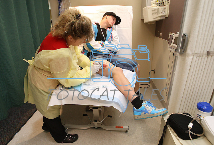Will Holbert doesn't like to watch as wound care nurse Cindy Peternell repacks an open wound on his leg on Jan. 23, 2008, in Carson City, Nev. Holbert, a standout high school athlete has been battling major health concerns for months related to a compartment syndrome injury to his leg..Photo by Cathleen Allison/Copyright Nevada Appeal