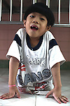 A child born with only one malformed leg poses for a picture at the Agent Orange children's ward of Tu Du Hospital in Ho Chi Minh City, Vietnam. About 500 of the 60,000 children delivered each year at the maternity hospital, Vietnam's largest, are born with deformities, some because of Agent Orange, according to doctors. May 1, 2013.