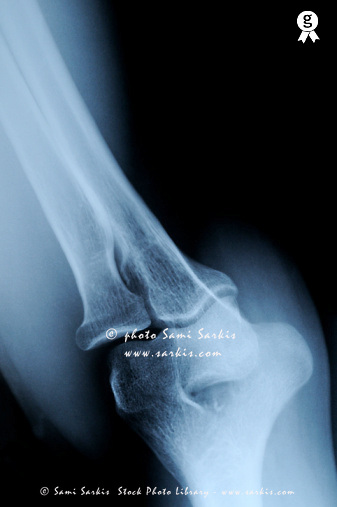 X-ray image of mature's man elbow (Licence this image exclusively with Getty: http://www.gettyimages.com/detail/sb10067234m-001 )