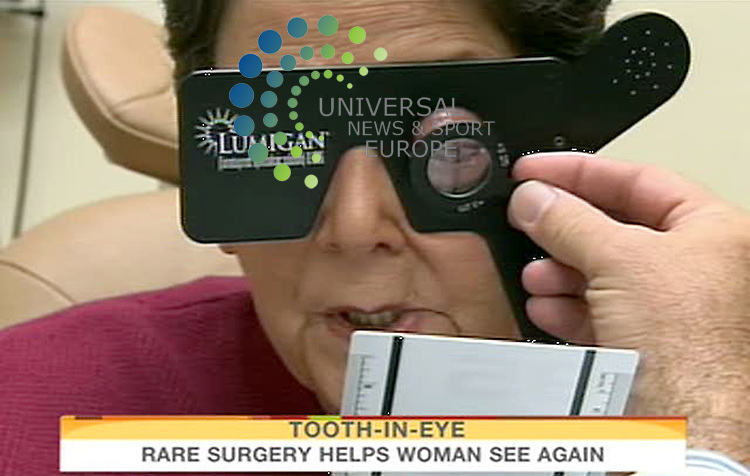 """Sharron Thornton, 60, who has been blind for nearly nine years, underwent a first-of-its-kind surgery at the University of Miami  that allowed her to regain useful vision in her eyes, and doctors used her tooth to make it all happen. The procedure, called modified osteo-odonto-keratoprosthesis, implants the patient's tooth in the eye to securely hold a prosthetic lens. The surgery is usually recommended in only the most extreme cases when the eye is not a candidate for cornea replacement or some other type of corrective surgery. """"We take sight for granted, not realizing that it can be lost at any moment,"""" Thornton said. """"This truly is a miracle."""" UM said  the procedure has never been performed in the United States. It was performed at the Bascom Palmer Eye Institute. The name of the tooth that's selected is called the eyetooth because it's located directly under the eye. Doctors said you can't see the tooth in the eye because it is covered by other layers, but the tooth keeps the lens stable and bonds it with the rest of the healthy parts of the eye. Science fiction to us, but a miracle to Thornton and her family...17 September 2009: Universal News and Sport (Scotland)/NBC.All pictures must be credited to  www.universalnewsandsport.com.(0ffice) 0844 884 51 22.(Universal News does not claim any Copyright or License in the attached material. Any downloading fee charged by Universal News and Sport is for Universal News services only. We are advised that videograbs should not be used more than 48 hours after the time of original transmission, without the consent of the copyright holder). ."""