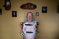 Les Baugh wears the body suit that allows him to interface with the experimental prosthetic arms being developed by John Hopkins Applied Physics Lab in Maryland.  The suit has been molded to fit Mr Baugh's body in order to maximise the sensation between Mr Baugh's nerves and the sensors inside the suit. Baugh lost both his arms at the shoulder in a freak electrical accident 40 years ago. Since then, he has managed life mostly without the help of prosthetic arms, which he finds to be more of an uncomfortable nuisance than a help. In 2013, Les underwent a state of the art surgery called Targeted Muscle Reinnervation, where the bundle of nerves at the stump of his shoulders were remapped to his pectoralis muscles. After he recovered from surgery, researchers at Johns Hopkins Applied Physics Lab fitted him with two robotic arms, called the MPL or Modular Prosthetic Limb, and he was able to manipulate objects with his hands, just by thinking about it. The MPL is a state of the art prototype, and not ready for take-home, so Baugh has been practicing mind control at home in rural Walden using a virtual reality game paired with less advanced prosthetic limbs. At a later stage the researchers at Johns Hopkins hope to get Les to try more advanced versions of the MPL  in the hope that his remapped nerves will have grown deeper into his pecs and he'll be able to manipulate the arms more effectively.