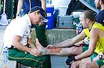 DEN HAAG - WK Hockey; enkel Blessure voor Matthew Swann . halve finale tussen Australie en Argentinie. COPYRIGHT KOEN SUYK