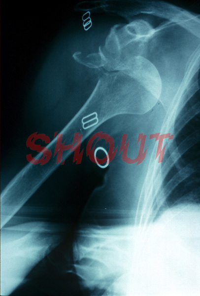 An x-ray of a dislocation of shoulder. This image may only be used to portray the subject in a positive manner..©shoutpictures.com..john@shoutpictures.com