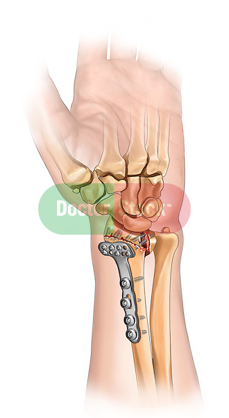 Distal radius fracture fixation; depicts an palmar view of the forearm and hand An incision is made to expose the radius The distal radius fracture is fixated with a plate