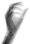 X-ray image of a reaching hand (black on white) by Jim Wehtje, specialist in x-ray art and design images.